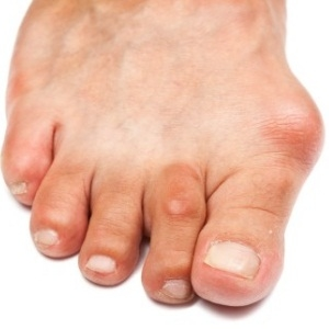 Top 5 Cures For Gout
