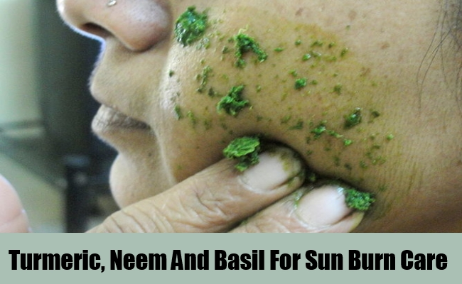 Turmeric, Neem And Basil For Sun Burn Care