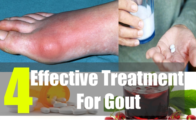 4 Effective Treatment For Gout