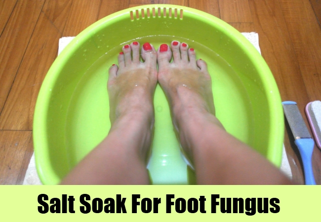 Salt Soak For Foot Fungus
