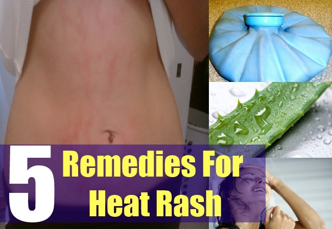 5 Remedies For Heat Rash