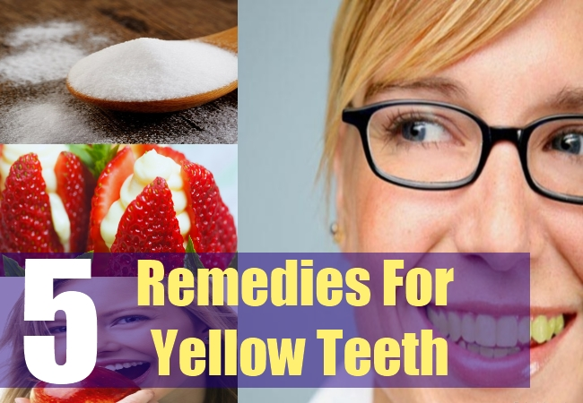 5 Remedies For Yellow Teeth