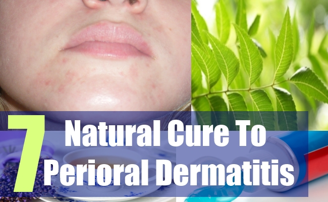 7 Natural Cure To Perioral Dermatitis