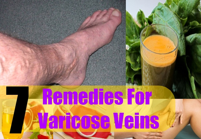 7 Remedies For Varicose Veins