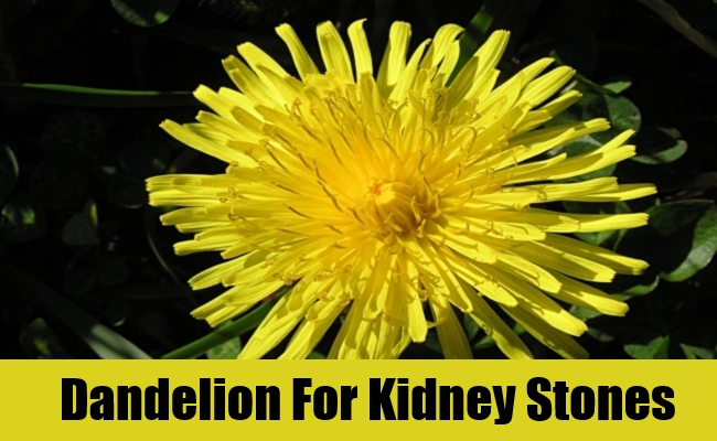 Dandelion For Kidney Stones