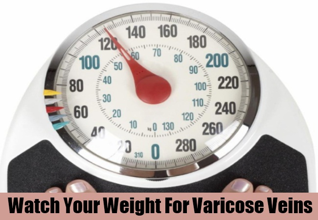 Watch Your Weight For Varicose Veins