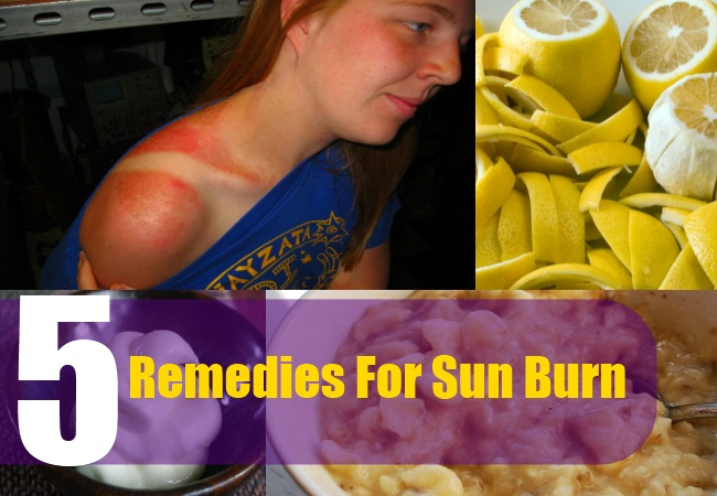 5 Remedies For Sun Burn