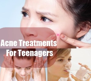 Acne Treatments For Teenagers