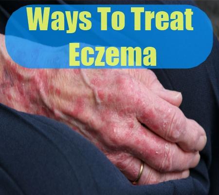 Ways To Treat Eczema