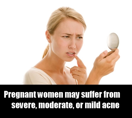 Ways To Deal With Acne During Pregnancy