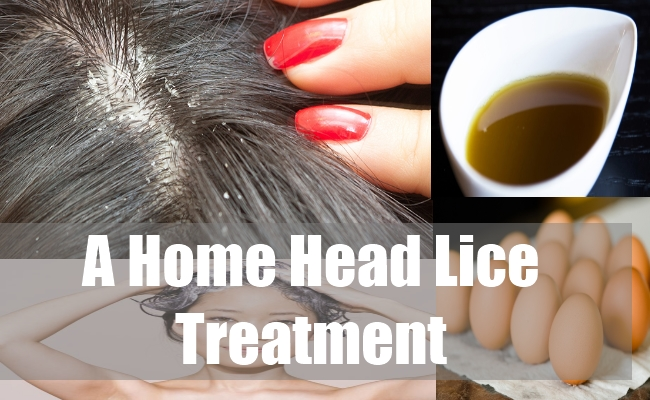A Home Head Lice Treatment
