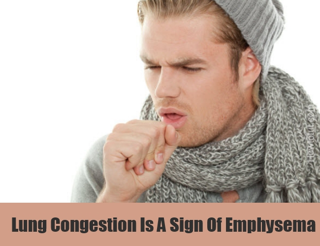 Lung Congestion Is A Sign Of Emphysema