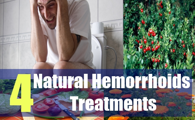 6 Natural Hemorrhoids Treatments