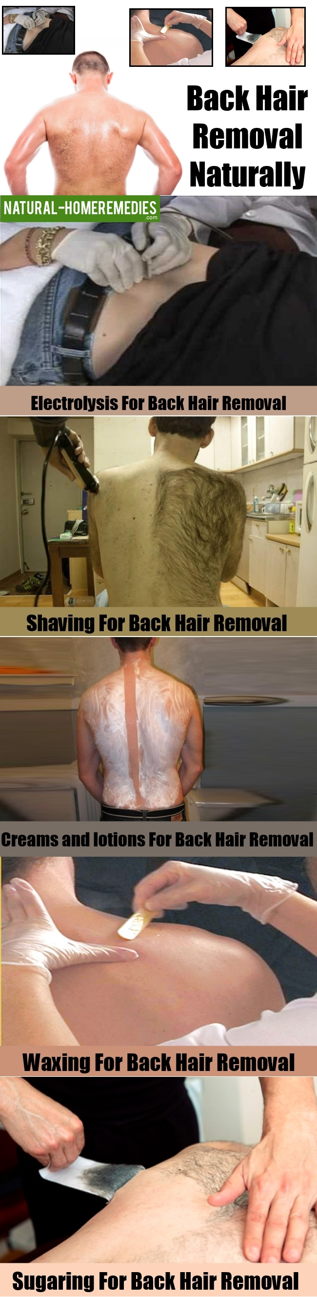 Back Hair Removal Naturally