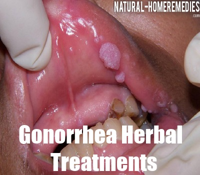 Gonorrhea cures