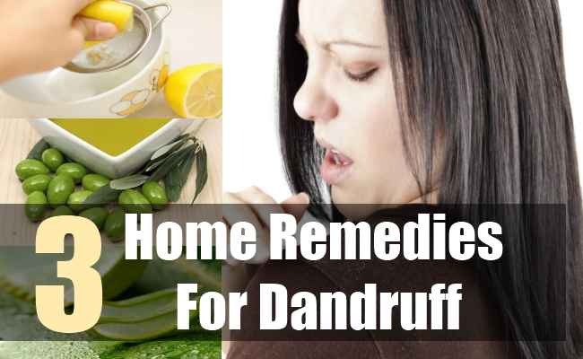 3 Home Remedies For Dandruff