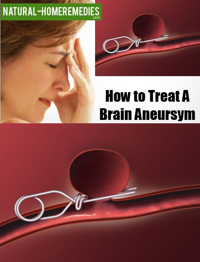 How to Treat a Brain Aneursym