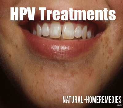 HPV treatments