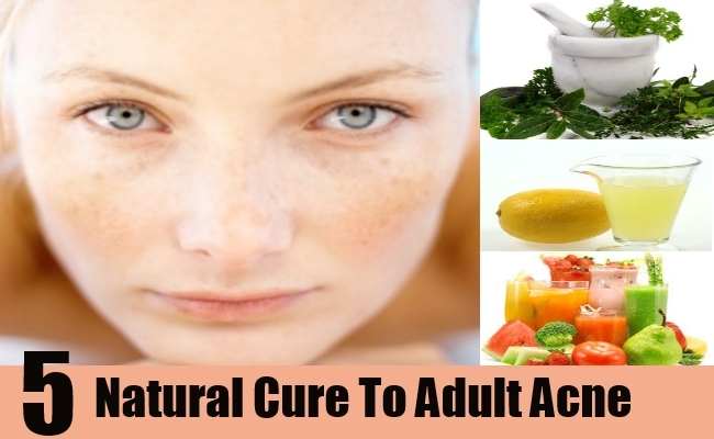 Natural Cures To Adult Acne