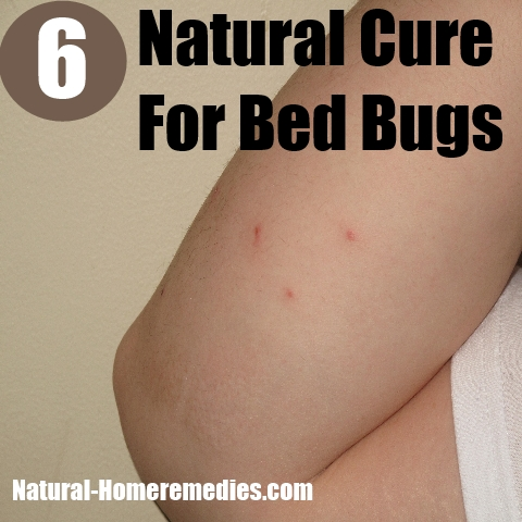 Natural Cure For Bed Bugs