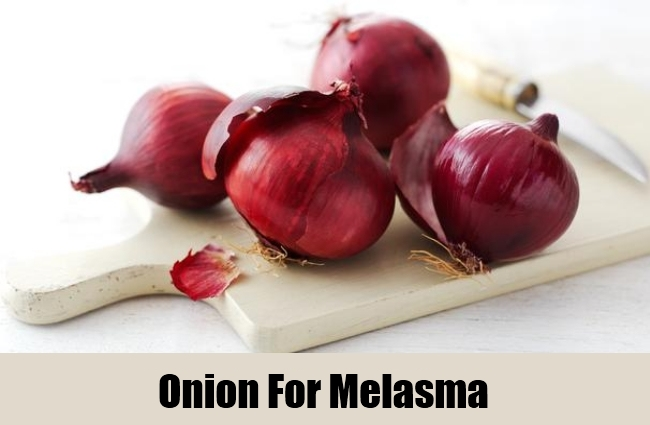Onion To Cure Melasma