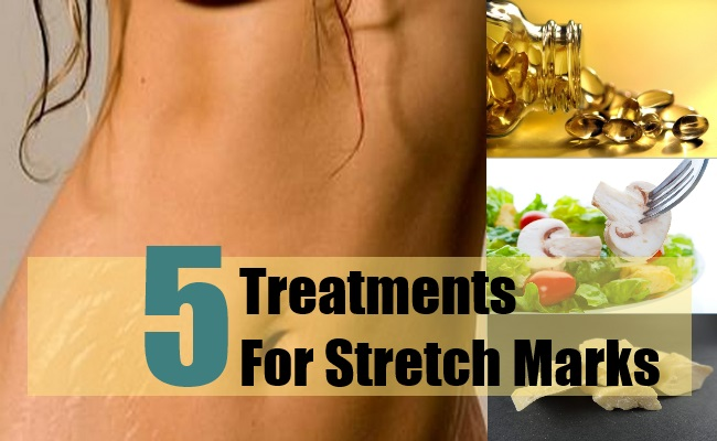 Treatments For Stretch Marks