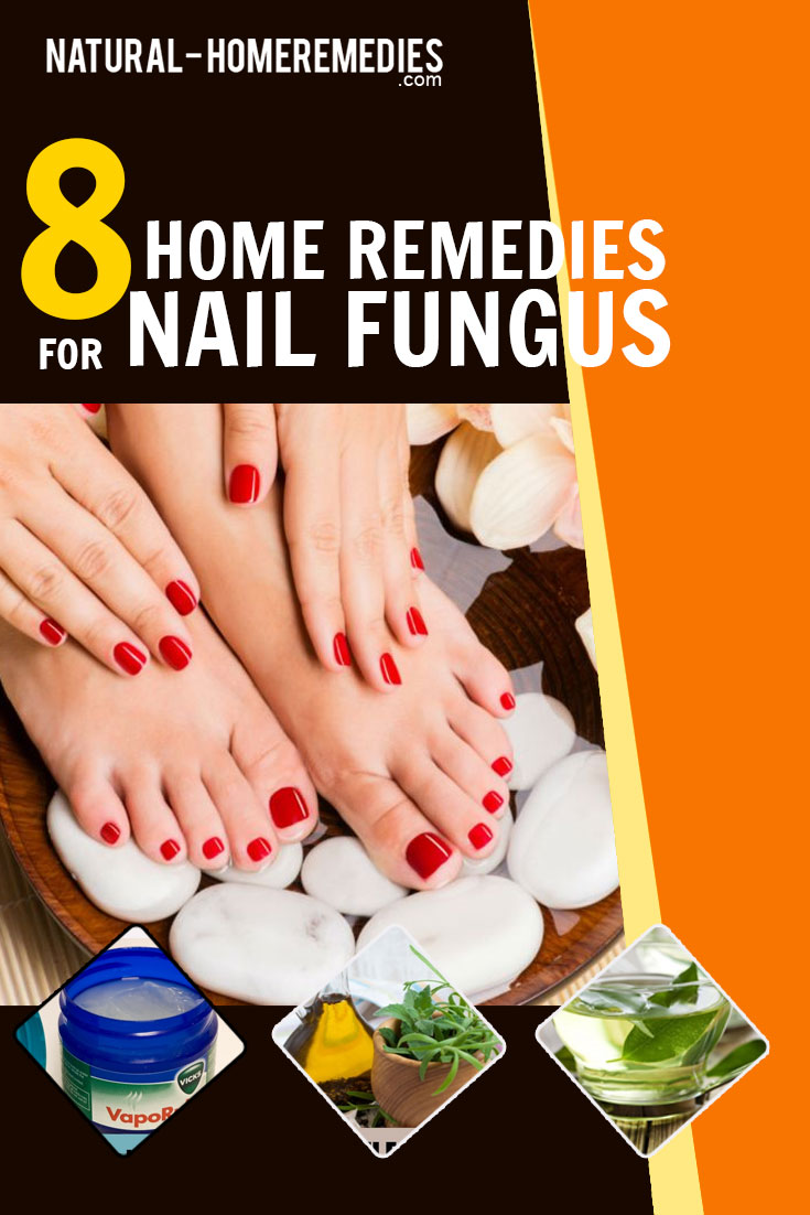 8-home-remedies-for-nail-fungus