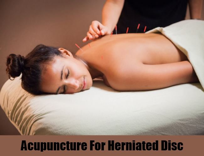 Acupuncture For Herniated Disc