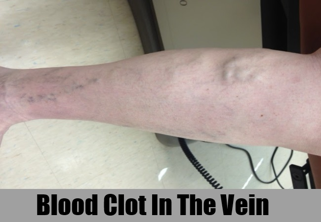 Blood Clot In The Vein