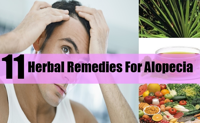 Herbal Remedies For Alopecia