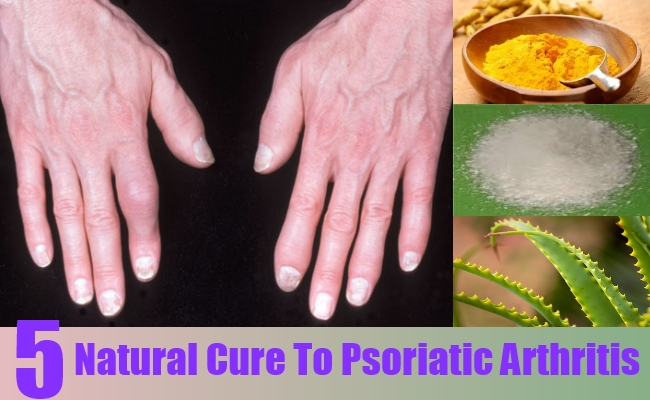 Natural Cure To Psoriatic Arthritis