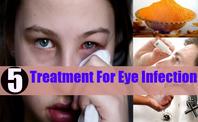 Treatment For Eye Infection