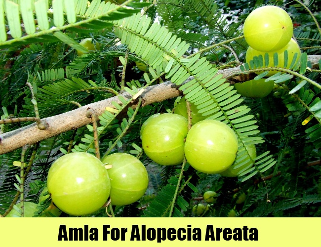 Amla For Alopecia Areata