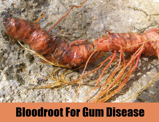 Bloodroot For Gum Disease