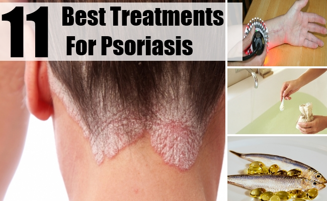 Treatments For Psoriasis