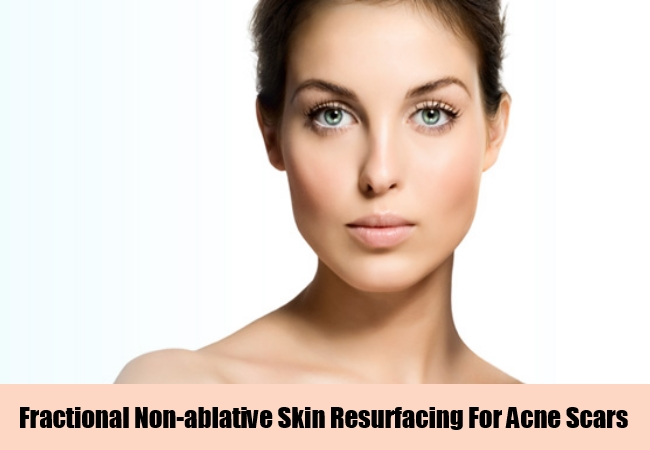 Fractional Non-ablative Skin Resurfacing