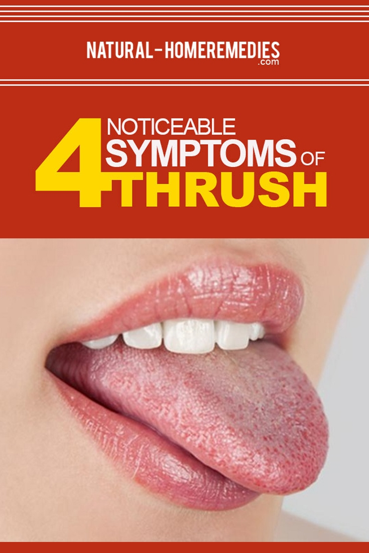 Symptoms Of Thrush
