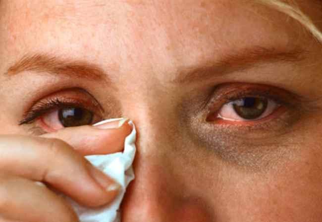 Dilation Of Pupils