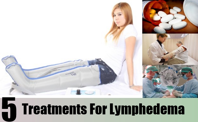 Treatments For Lymphedema