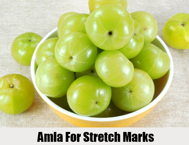 Amla For Stretch Marks