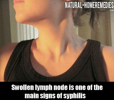 Swollen Lymph Nodes