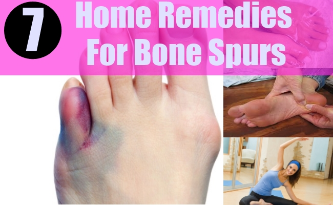 Home Remedies For Bone Spurs