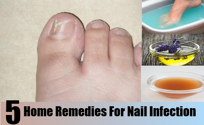 Top 5 Home Remedies For Nail Infection – Natural Home Remedies ...