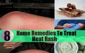 Excellent Home Remedies To Treat Heat Rash