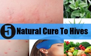 Natural Cure To Hive