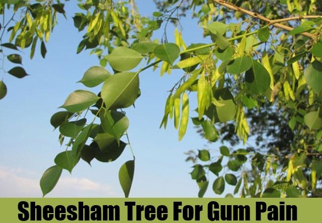 Sheesham Tree