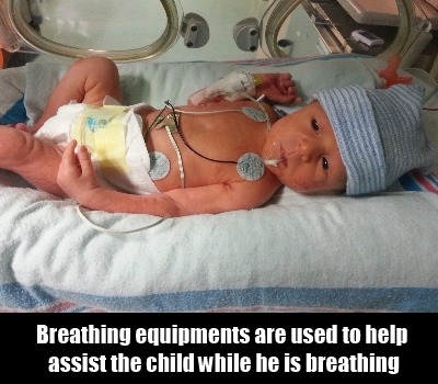 Breathing Assistance