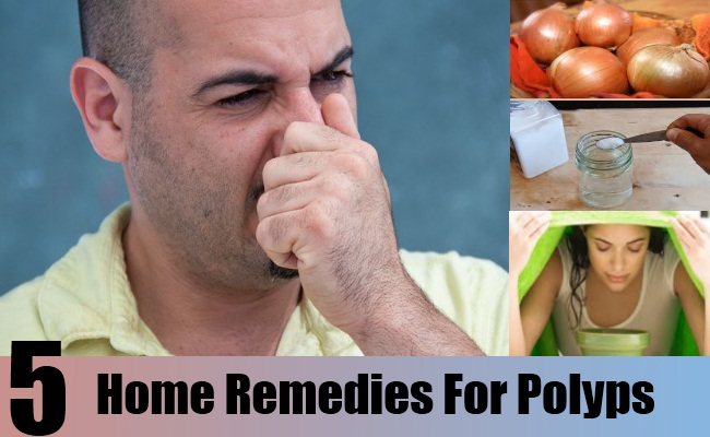 Home Remedies For Polyps