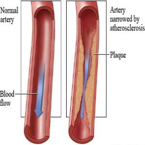 Arthrosclerosis