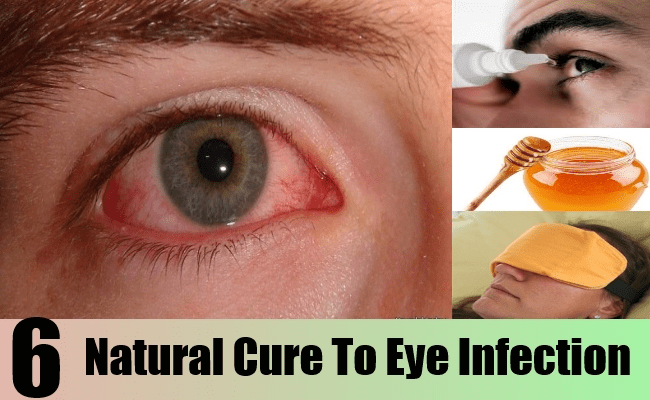 Natural Cure To Eye Infection